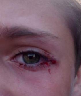 ハンドスピナーの子供の事故事例1:11歳男子 目に当たり危うく失明